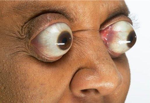 eye pop